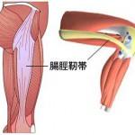 自転車で膝の外側の痛みの原因はO脚!ロードバイクでの悩み